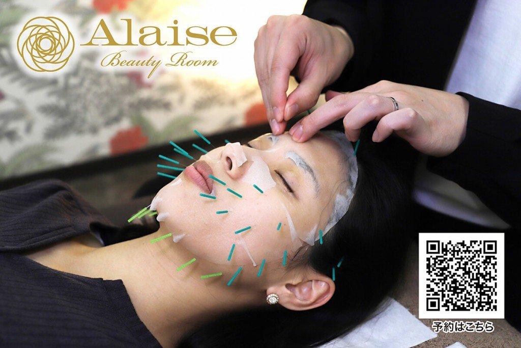 Alaise Beauty Roomの施術