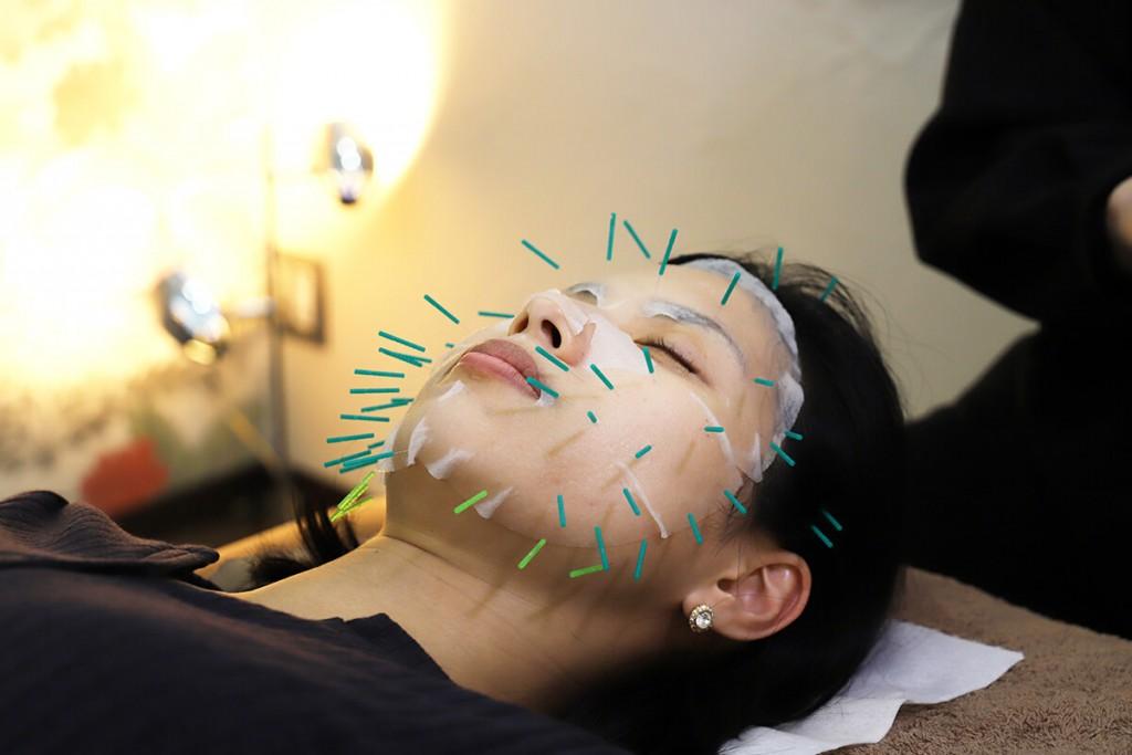 Alaise Beauty Roomの幹細胞美容鍼